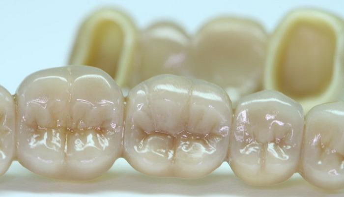Cirkonio keramikos dantys