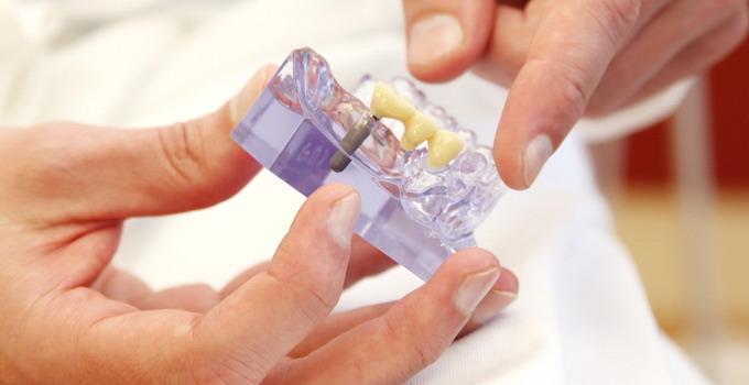 kas-yra-dantu-implantai