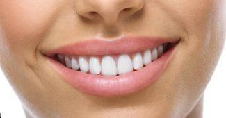 kompozicines dantų laminatės